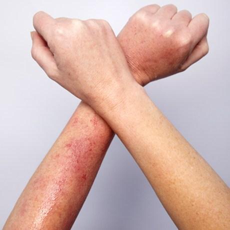 Mùa hè rất dễ mắc các bệnh về da