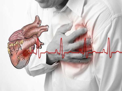 Nhồi máu cơ tim và đột quỵ là những biến chứng nguy hiểm nhất của bệnh tiểu đường.