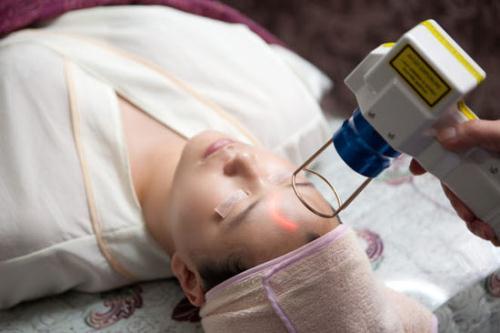 Những vấn đề cần biết về điều trị tàn nhang bằng laser?