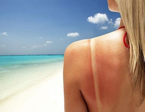 Dầu dừa giúp trị cháy nắng rất tốt. Nhưng các bạn đừng quên sử dụng kem chống nắng mỗi ngày nhé.