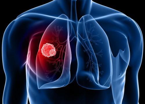 Ung thư phổi thường khiến nước bọt có mùi hôi