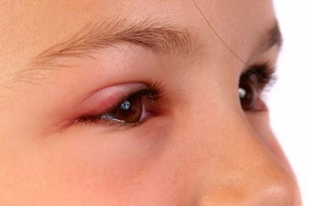 Mí mắt bị sưng là một triệu chứng của bệnh đau mắt đỏ