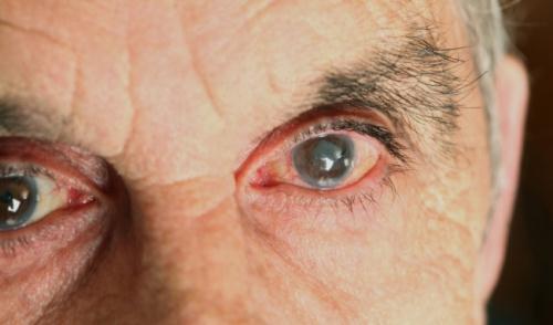 Phần lớn đục thủy tinh thể xảy ra ở người già