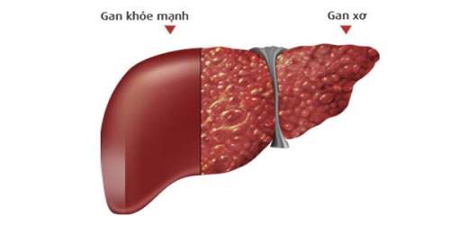 Men gan tăng cao dẫn đến các bệnh nghiêm trọng về gan