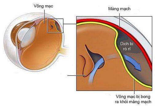 Bong vong mac- khong dau, nhung co the gay mu loa