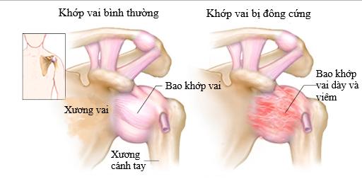 Viem khop vai the dong cung: can benh pho bien nhung it nguoi biet