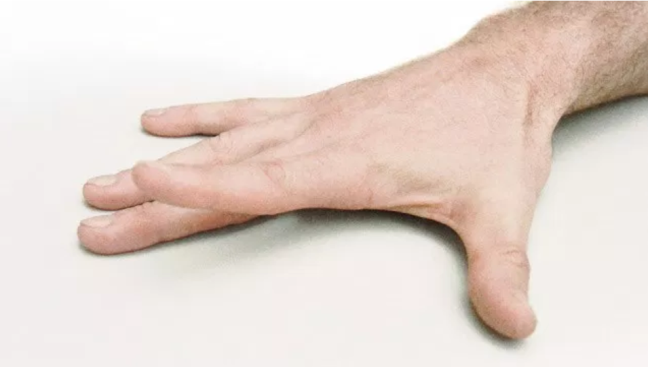 7 bai tap giup giam tinh trang dau cua chung viem khop tay